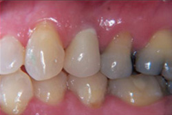 maron-dental-after-implant