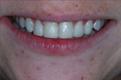 Patient's mouth after recontouring teeth with plastic fillings