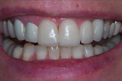 Patient's teeth after having porcelain veneers to change the shape of the teeth