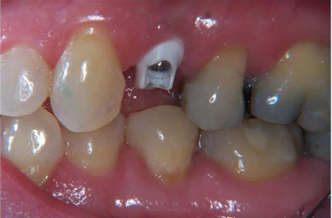 Implant (not visible) with white zirconium abutment