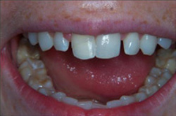 Patient's mouth before recontouring teeth with plastic fillings