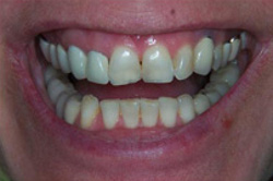 Patient's teeth before having porcelain veneers