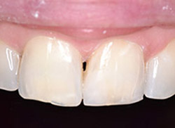 After: Patient's mouth with plastic bonded to the tooth