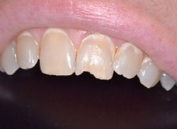 Before: Patient's mouth with chipped tooth