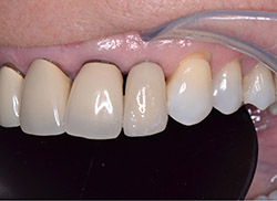 After: Patient's mouth with an implant placed with a crown over it to fill the space