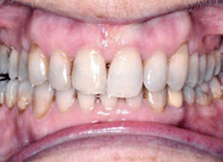 After: Patient's mouth after using Invisalign orthodontics to straighten the teeth