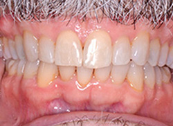 After: (Frontal view) Patient's mouth after Invisalign brought teeth even with other teeth