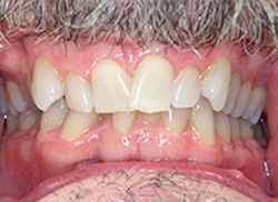 Before: Patient's mouth with severe crowding of teeth