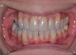 After: Patient's mouth after Invisalign brought the tooth into the arch