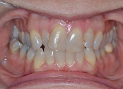 Before: Patient's mouth with tooth blocked out of arch