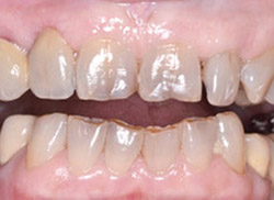 After: Patient's mouth with a crown placed on a tooth next to the empty space and a false tooth placed off the crown