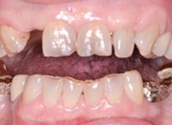 Before: Patient's mouth with space from missing tooth