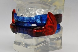 Patient wearing Dr. Maron's oral appliance for sleep apnea