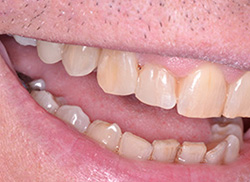 After: Patient's mouth with plastic bonded to fill the space
