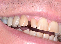 Before: Patient's mouth with too much space between teeth