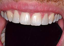 After: Patient's mouth with plastic added to close the space between the central incisors and to lengthen the lateral incisors