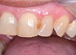 Before: Patient's mouth with stained tooth